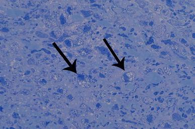 acumulación celular de GAGs