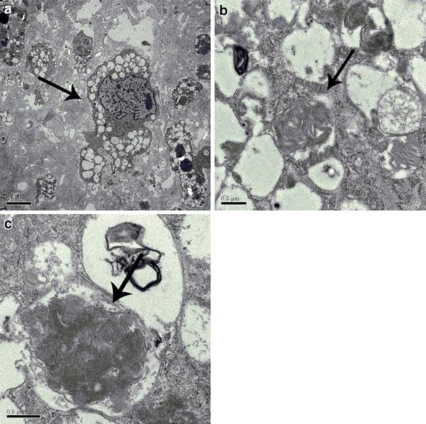 La microscopía electrónica de la válvula aórtica. una flecha muestra una histiocito vacuolado, indicando acumulación lisosomal de glicosaminoglicanos. b, c puede verse en los lisosomas, la formación zebra body que indica acumulación lisosomal de glicosaminoglicanos