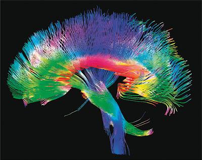 Imágenes cerebrales de alta tecnología para descubrir los secretos de una enfermedadgenética…